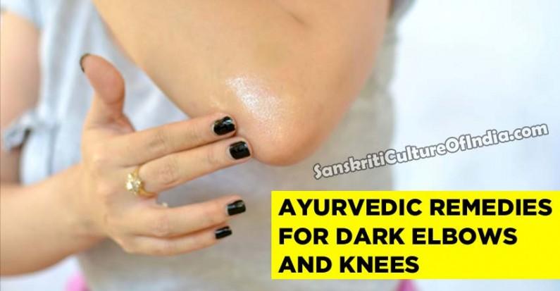 Ayurvedic Remedies for Dark Elbows and Knees