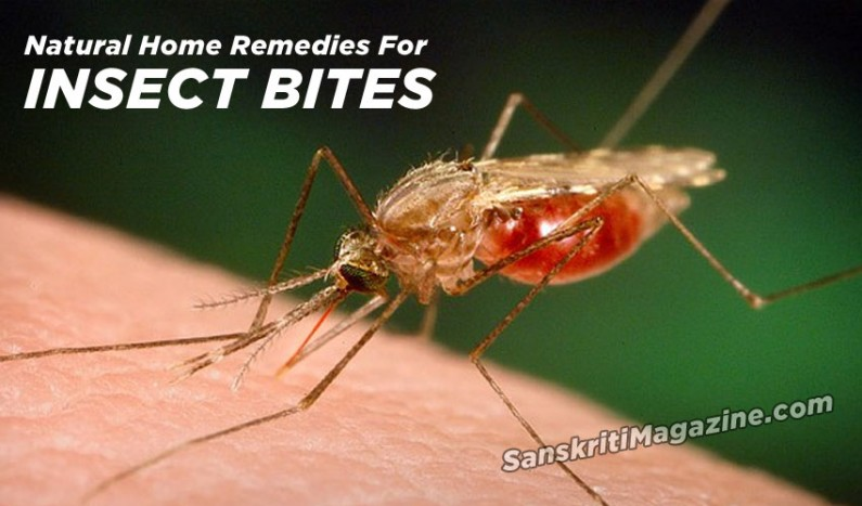 Natural Home Remedies For Insect Bites