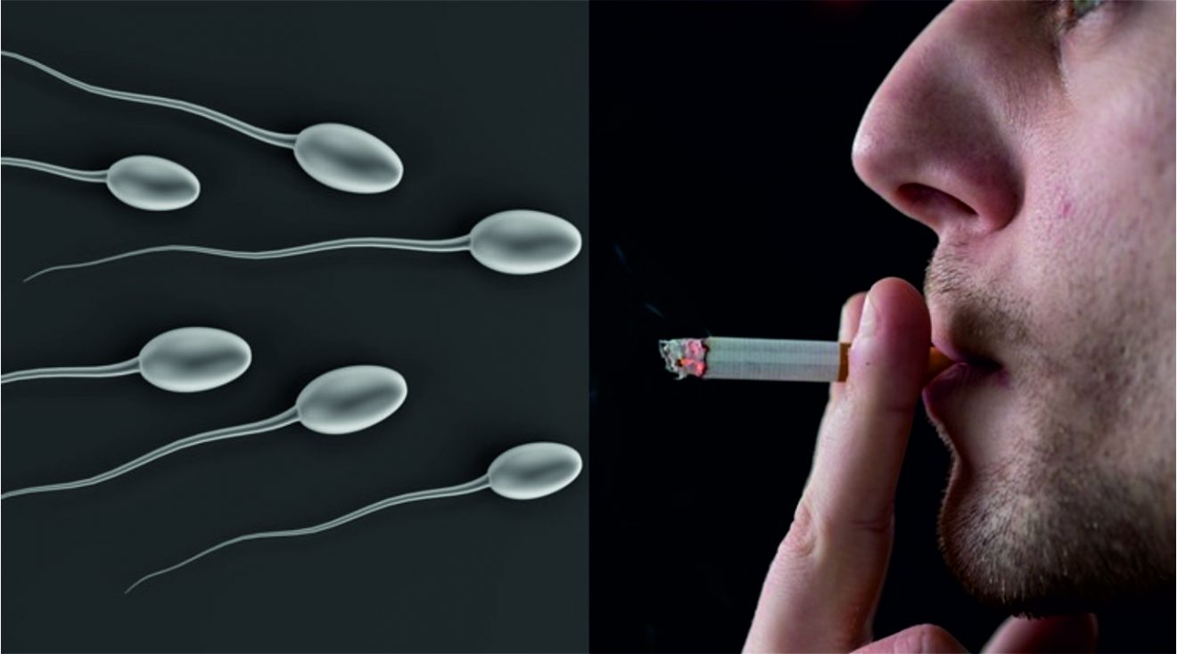 Stress, smoking, obesity render 15% of Delhi's males infertile
