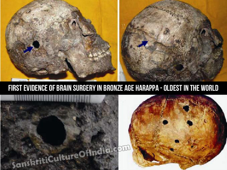 Brain Surgery in Ancient India