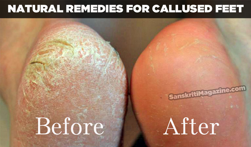 Natural remedies for callused feet